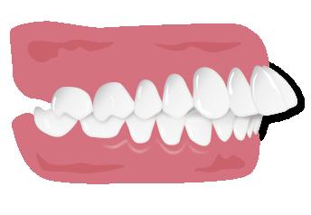 上顎前突の悪影響