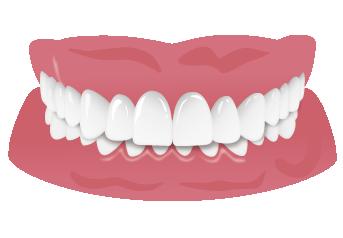 過蓋咬合のの悪影響