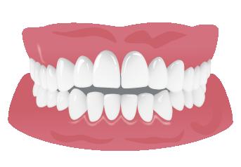 開咬の悪影響