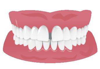すきっ歯の悪影響<