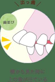 横から見た時に上の歯が出ている