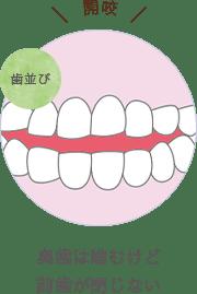奥歯は噛むけど前歯が閉じない