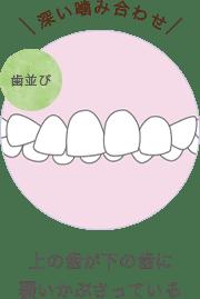 上の歯が下の歯に覆いかぶさっている